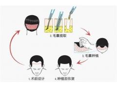 上海植发医院美莱种植头