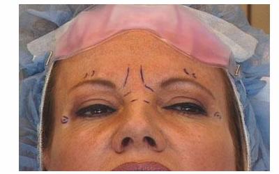 美莱激光除皱有副作用吗