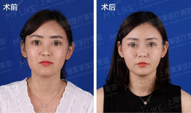 上海美莱申涛主任线雕案例