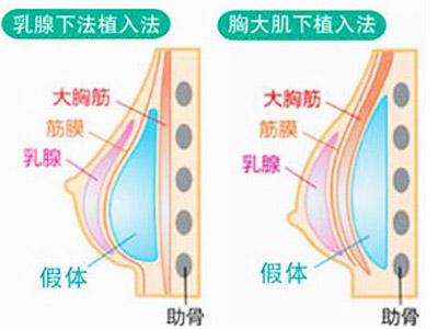 上海做双平面隆胸术特点有哪些