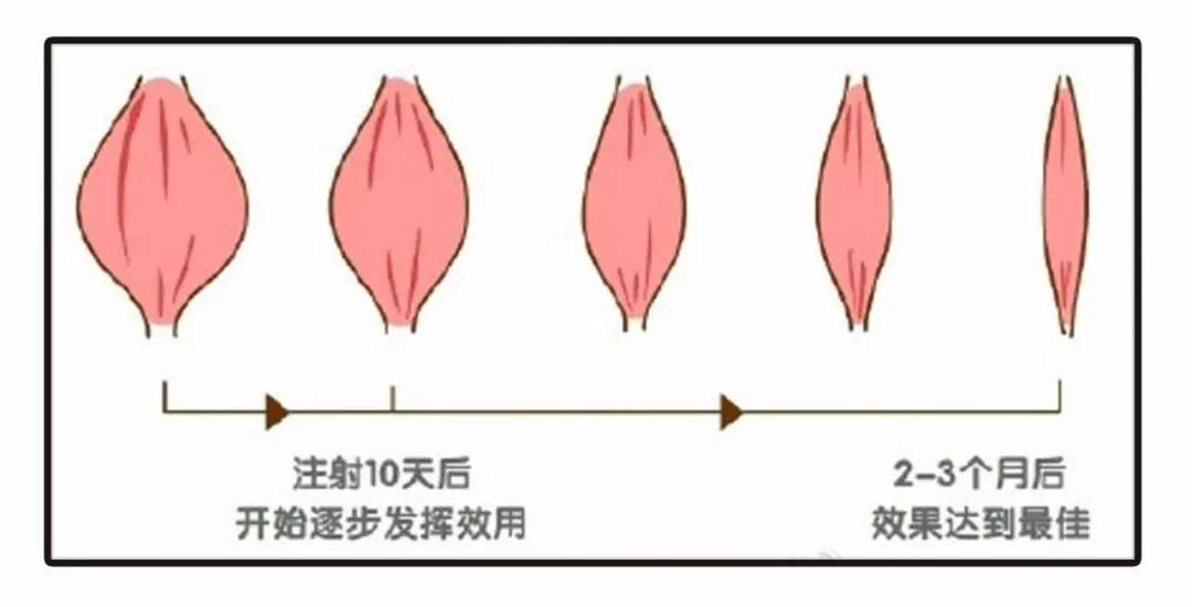 上海美莱瘦脸神器 选对方法重中之重