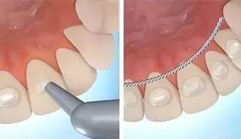 牙齿矫正保持器佩戴注意事项有哪些