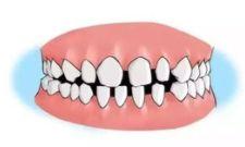 儿童矫正牙齿几岁可以