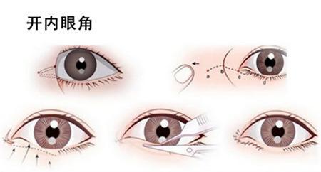 在上海做开眼角有什么风险