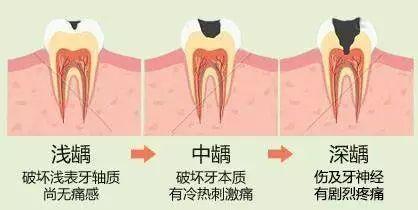 刷牙能把蛀牙细菌都消灭掉吗