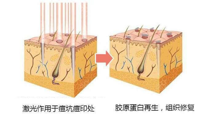 上海做点阵激光祛痘效果好不好