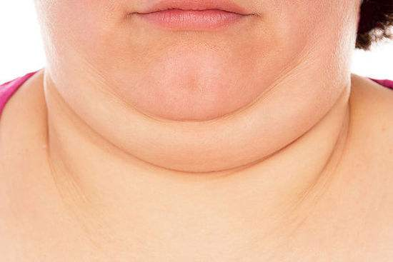 怎么瘦双下巴有效?上海选择吸脂好还是吸脂减肥好