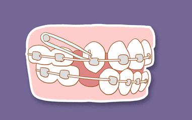 美莱科普|牙齿矫正前你必须知道的10件事