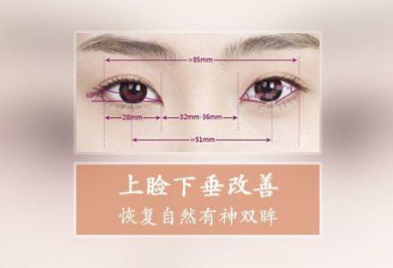 眼睑下垂矫正手术上海哪家医院做得好