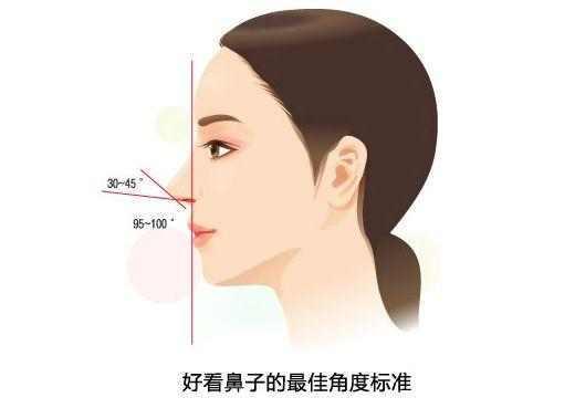 做完鼻子应该注意什么