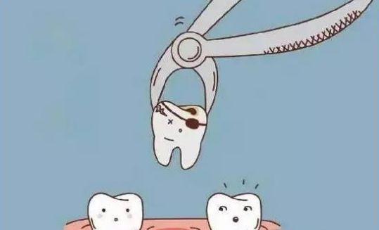 上海地区做补牙一般需要多少钱