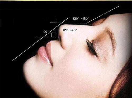 隆鼻后肿胀期一般是多久