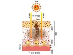 上海美莱提醒你:祛斑你都踩了哪些坑