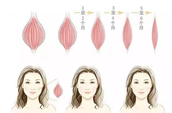 上海打完瘦脸针的变化过程