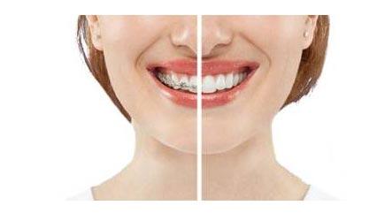 成人牙齿矫正能改变面部脸型吗