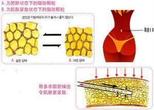 上海做腹部抽脂会留疤吗