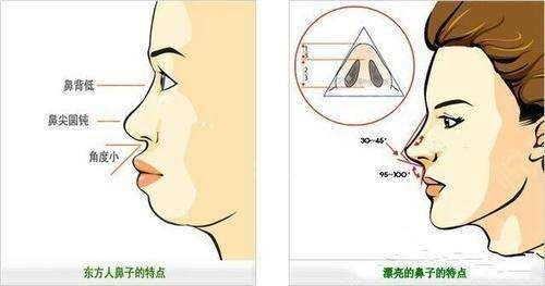 做注射隆鼻适合哪类人