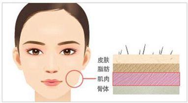 上海打瘦脸针价格高低跟什么有关