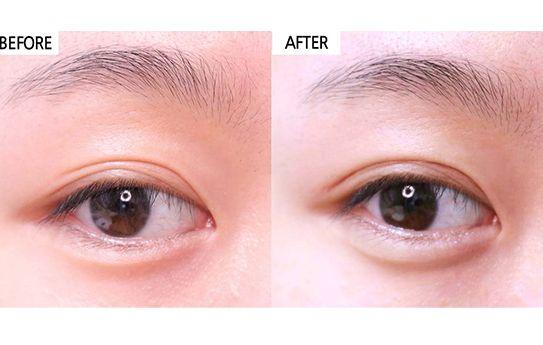 上眼皮下垂还能做双眼皮手术吗