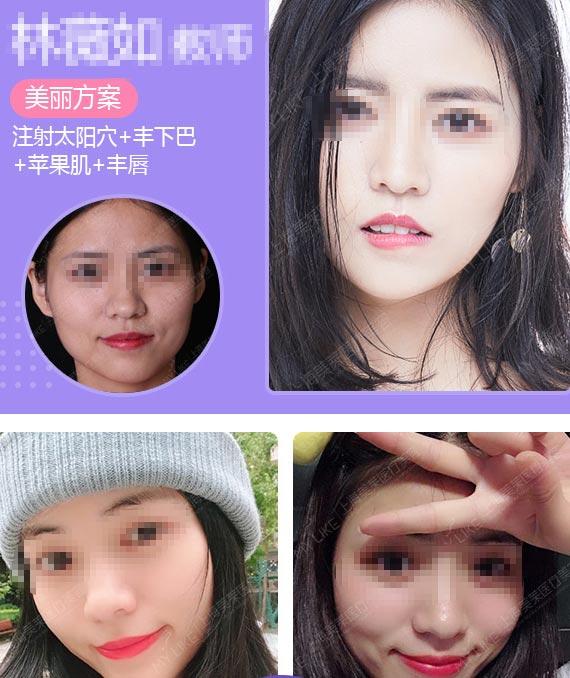 上海美莱玻尿酸填充案例