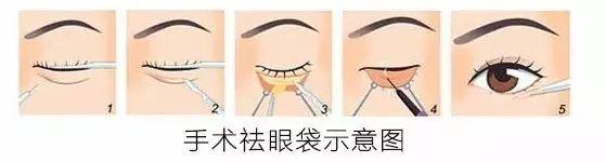 上海做个祛眼袋手术一般需要多少钱