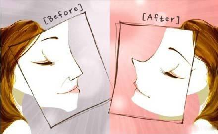 自体软骨隆鼻效果安全吗
