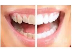 冷光美白牙齿又需要多少钱