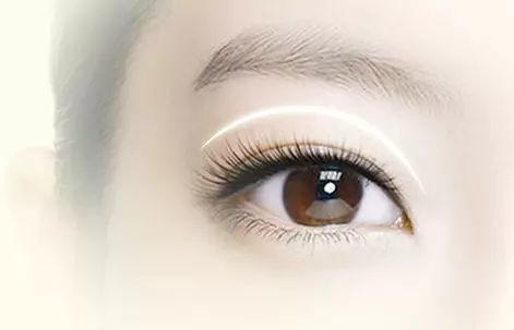 上海怎么样选择双眼皮手术好