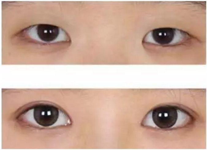 女的单眼皮适合做开眼角手术吗