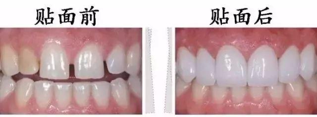 上海美莱做牙齿贴面修复具备的优势有哪些