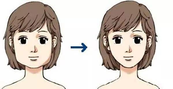 咬肌肥大注射瘦脸可以缩小咬肌吗