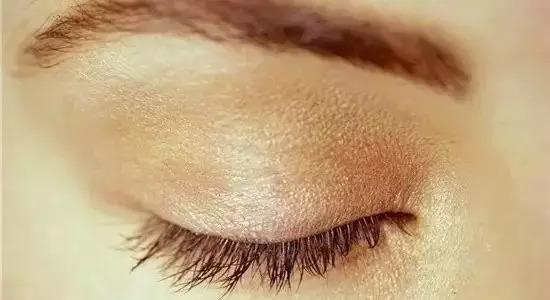 上海做双眼皮手术主要分为哪几种
