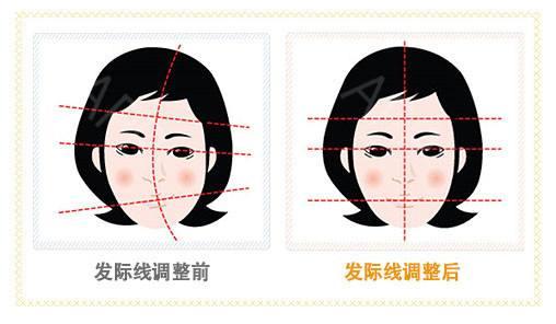 上海做鬓角移植哪里专业