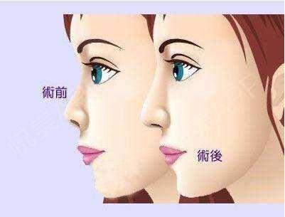 鼻子打了玻尿酸后遗症有哪些