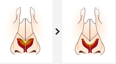 哪里做鹰钩鼻矫正比较安全呢