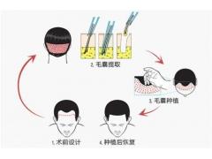 上海做植发手术的价格是多少