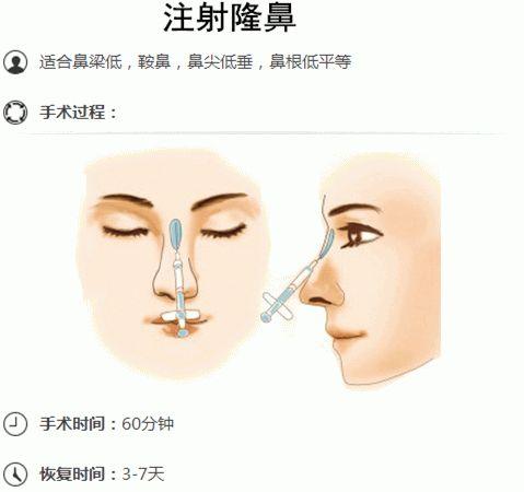 美莱:哪种类型的玻尿酸更适合隆鼻