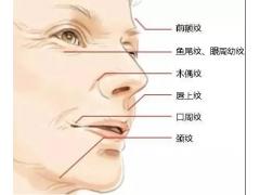 上海有什么方法能够消除皱纹
