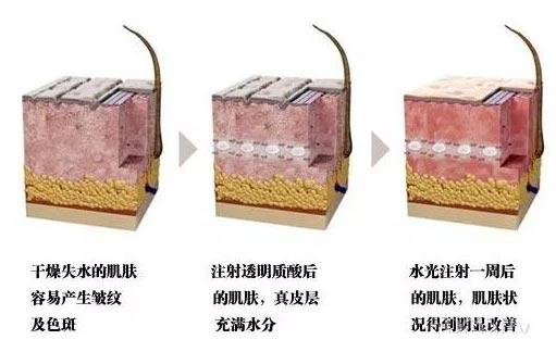 上海美莱为您献上冬季护肤秘籍宝典