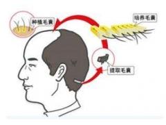 上海地区做毛发移植需要多少钱