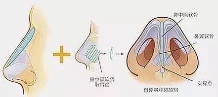 【上海美莱隆鼻分享】|假体、自体软骨、玻尿酸等隆鼻方式哪个更好