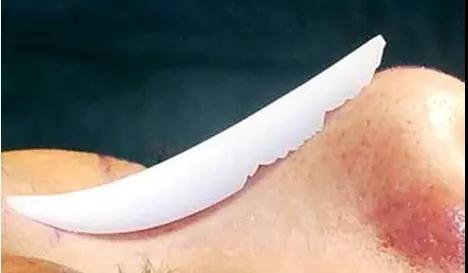 做假体隆鼻它究竟是在哪进行缝合的