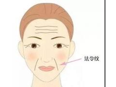 法令纹注射除皱以后容易脸僵吗