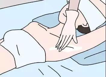 为什么做冰点脱毛需要多个疗程呢