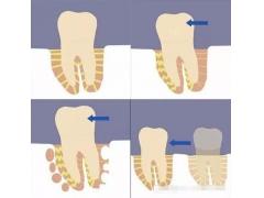 【美莱科普】牙齿矫正这些习惯不得不知