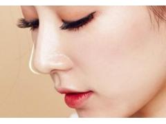 一般上海做线雕隆鼻整形费用多少钱