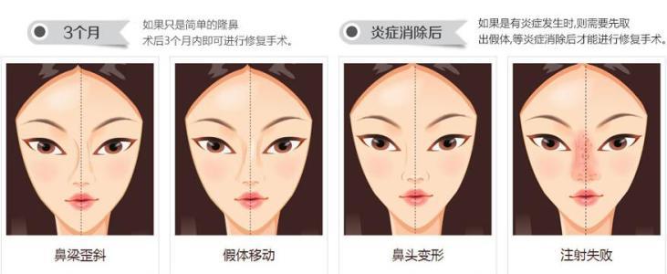 上海做隆鼻尖手术大概需要多少钱
