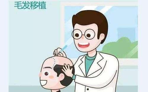 上海做头发种植一般需要多少钱