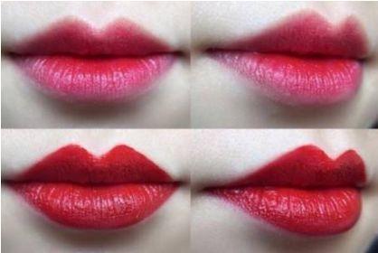上海做纹唇整形一般需要多少钱