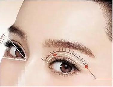 美莱做切开法双眼皮恢复期需要多少钱